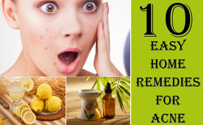 10 Effective & Safe Home Remedies To Get Rid Off Acne