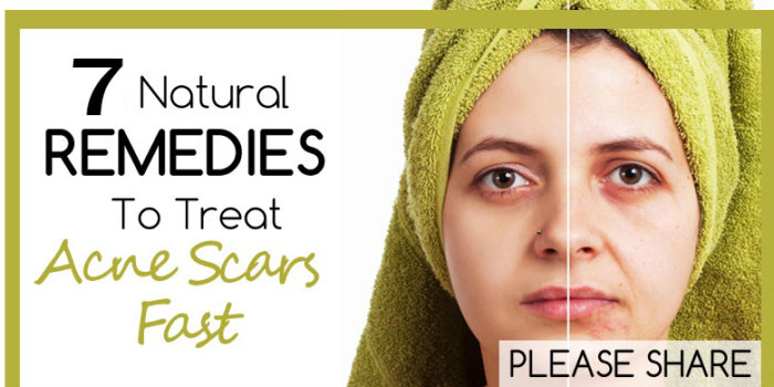 natural remedies for acne